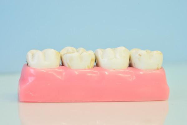 Qual è il legame tra batteri, tartaro e parodontite?