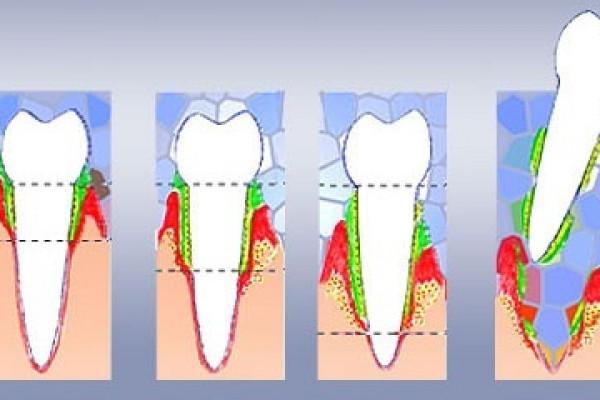 Che cos'è il parodonto e qual è il ruolo dei tessuti parodontali?